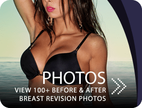 Breast Implant Revision in San Francisco Bay Area