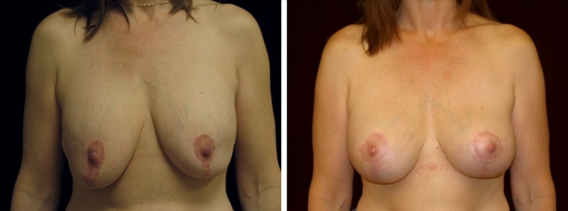 Before and After Breast Revision Surgery