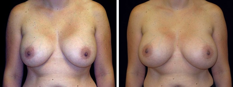 Breast revision surgery in San Francisco