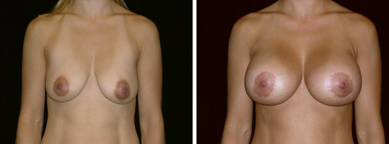 Breast Revision in San Francisco