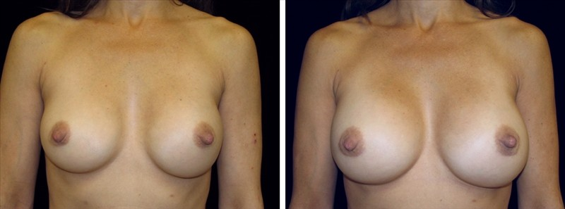 breast revision with larger implants