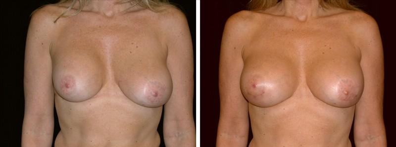 Asymmetrical Breasts in San francisco