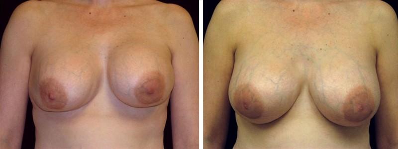breast capsular contracture - San Francisco Breast Revision
