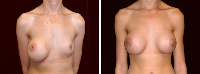 breast capsular contraction